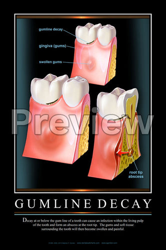 Gumline Decay Wall Chart