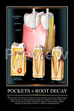 Load image into Gallery viewer, Pockets & Root Decay Wall Chart