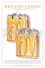 Load image into Gallery viewer, Repair of Caries Wall Chart
