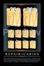 Load image into Gallery viewer, Repair of Caries #2 Wall Chart