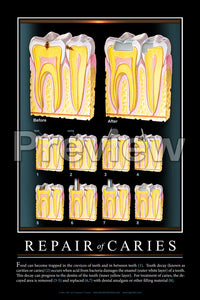 Repair of Caries #2 Wall Chart