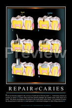 Load image into Gallery viewer, Repair of Caries #3 Wall Chart