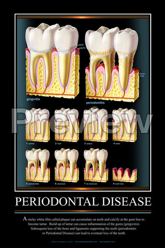 Periodontal Disease Wall Chart
