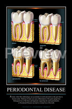 Load image into Gallery viewer, Periodontal Disease #2 Wall Chart