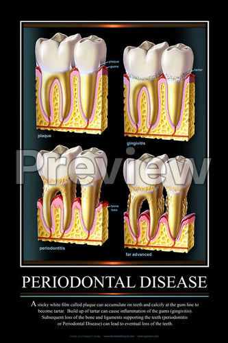 Periodontal Disease #2 Wall Chart