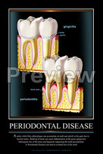Load image into Gallery viewer, Periodontal Disease #3 Wall Chart