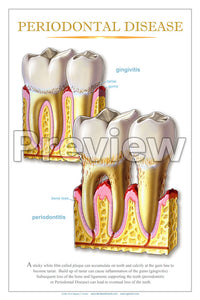 Periodontal Disease #3 Wall Chart