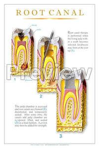 Root Canal #2 Wall Chart