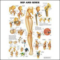 Chart illustrates hip and knee anatomy