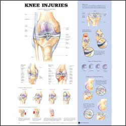 Chart illustrates injuries of the knee