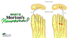 What is Morton's Neuroma? Morton's Neuroma Symptoms, Causes, & Natural Remedy