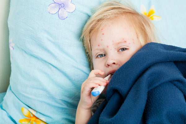 postherpetic neuralgia symptoms causes and natural treatment for postherpetic neuralgia little boy under blue fleece blanket with thermometer in his mouth laying down with the chickenpox