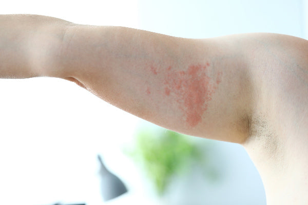 shingles pain relief a natural remedy for shingles bicep arm with shingles rash virus light background