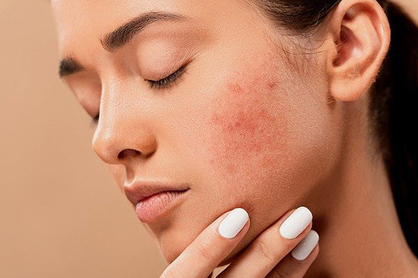 vetiver essential oil benefits for skin reduces acne woman close up of face