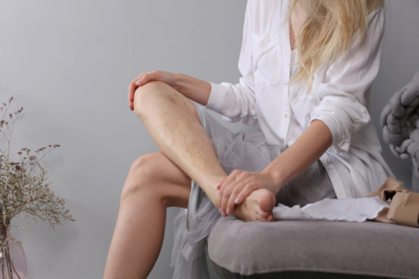 what are varicose veins woman sitting on gray couch spider veins on leg