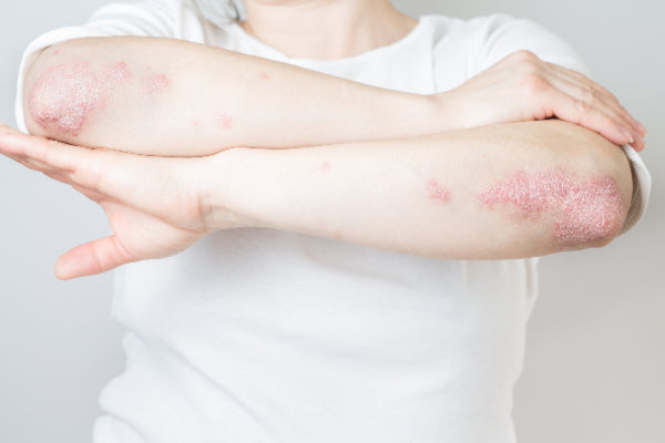 what is psoriatic arthritis causes symptoms of psoriatic arthritis and natural remedies for psoriatic arthritis woman with psoriasis on elbows and forearms wearing white shirt against white background