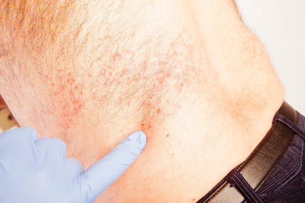 what is the shingles virus shingles causes man with shingles rash on left side gloved hand pointing