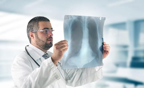 Physicians have discovered lung scarring in patients who have recovered from Covid-19.