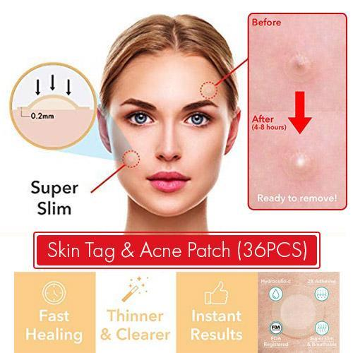 Skin Tag Remover - Acne & Eliminate Acne Marks - 24 pieces