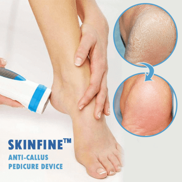 Anti-Callus Pedicure Device(BUY 2 GET FREE SHIPPING)