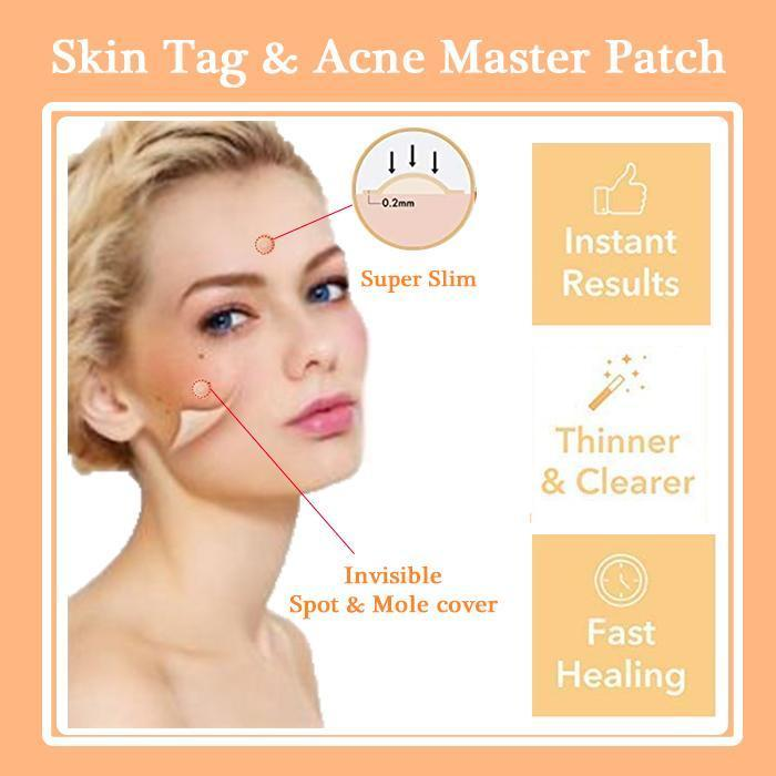 Acne Pimple Skin Tag Master Patch (36pcs)