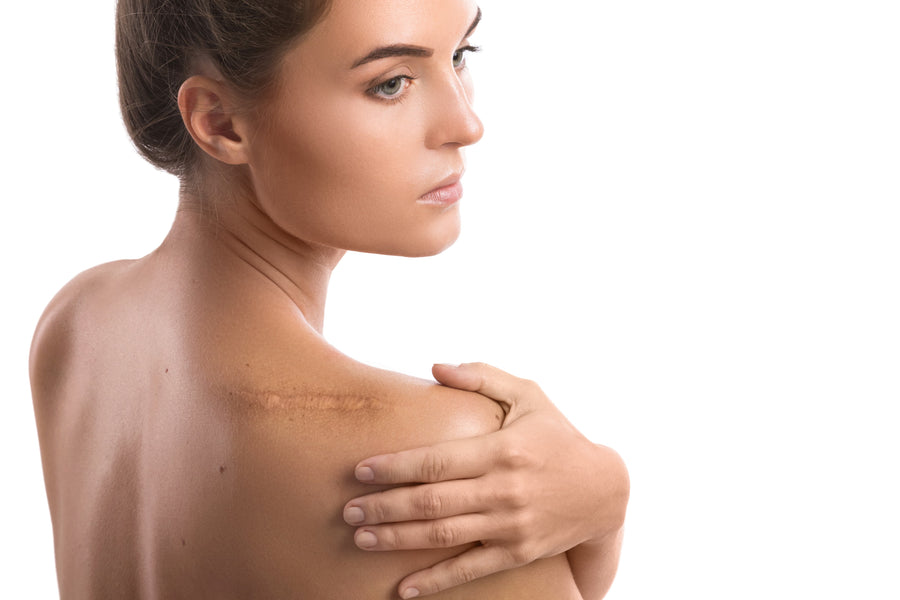 How to Reduce Scars WITHOUT Damaging Your Skin