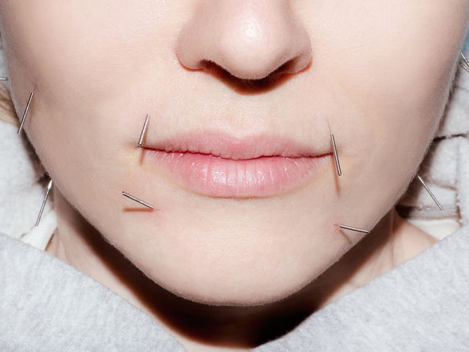 files/I-tried-acupuncture-for-the-first-time-the-everygirl.jpg
