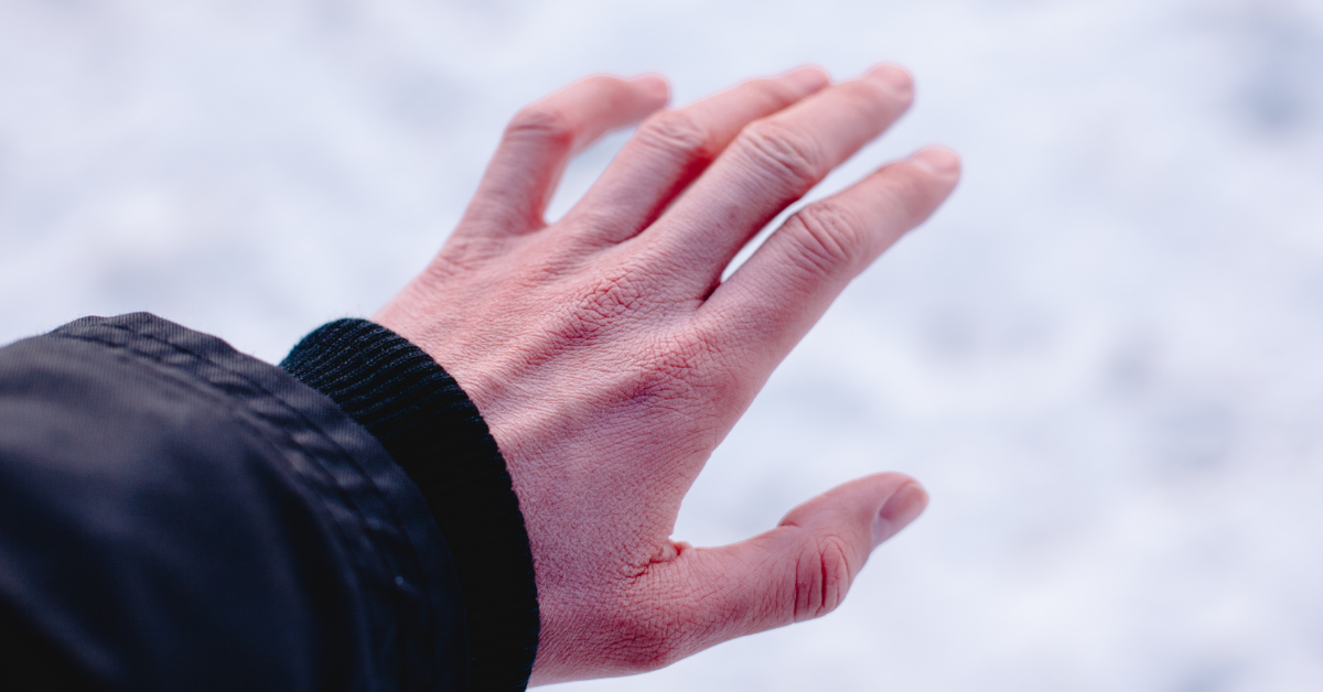 what is frostbite