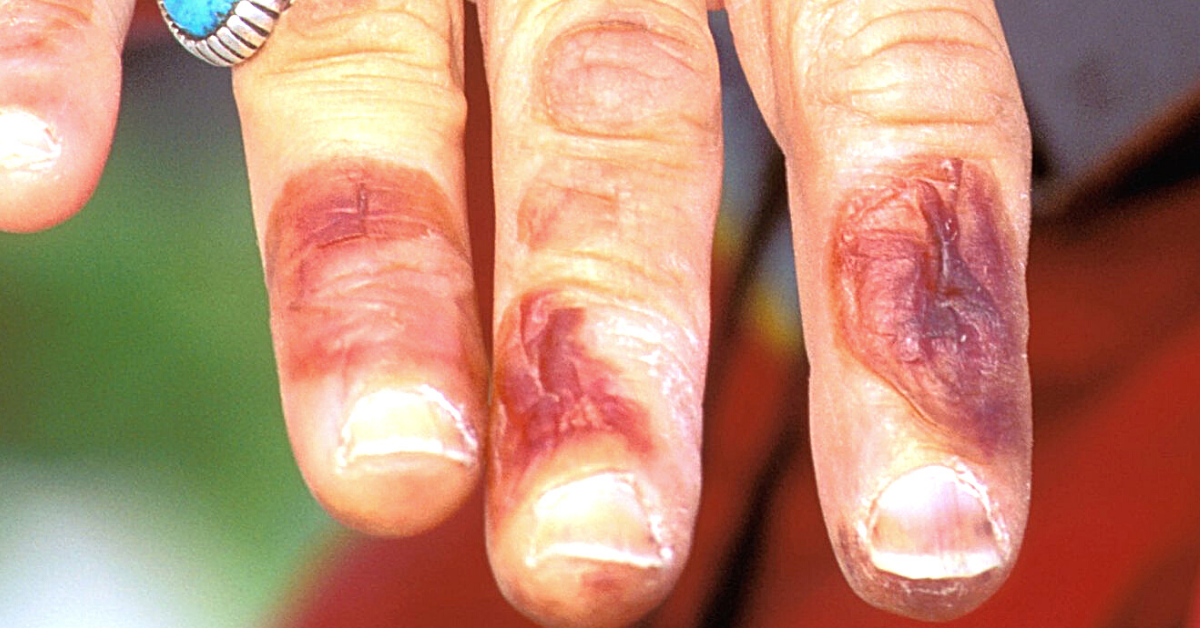 superficial frostbite