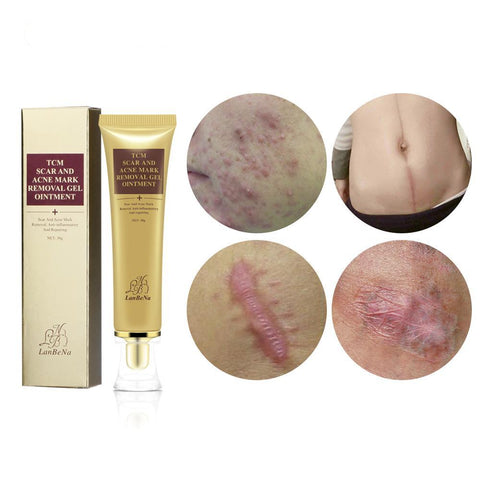 Acne Scar Removal Cream - Vanity Deals