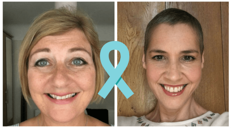 Ovarian Cancer Two Amazing Women Tell Their Stories Live Better With Cancer
