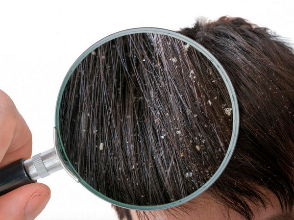 Poppy Seeds for Dandruff