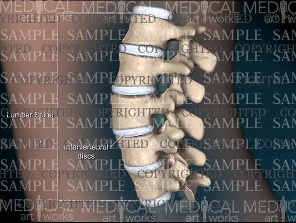 Female lumbar spine normal anatomy