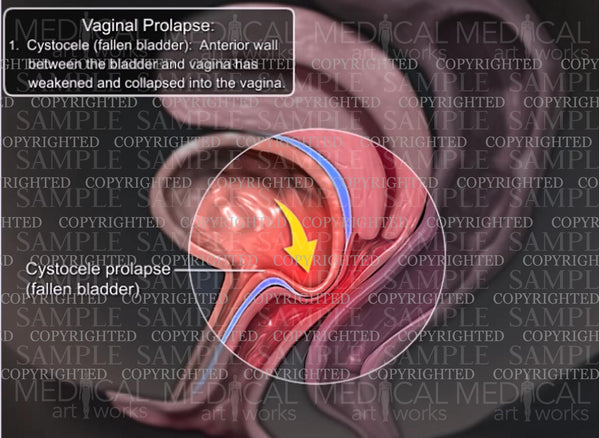 Vaginal Prolapse - Cystocele (fallen bladder)