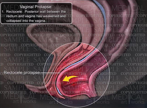 Vaginal Prolapse - Rectocele