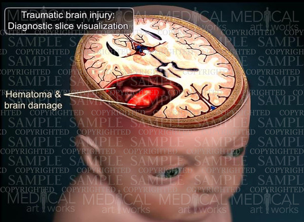 Traumatic brain injury - Diagnostic slice visualization