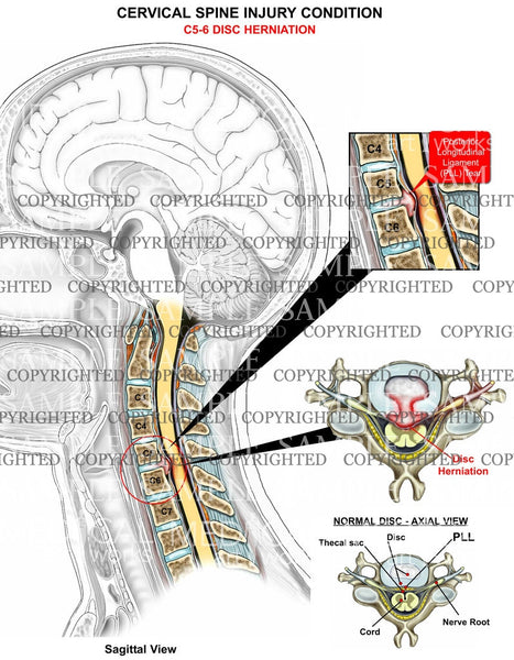 C5-6 disc herniation2 - central