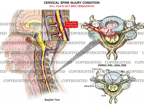 C4-5, C5-6, C6-7 cervical disc herniations - 3 level