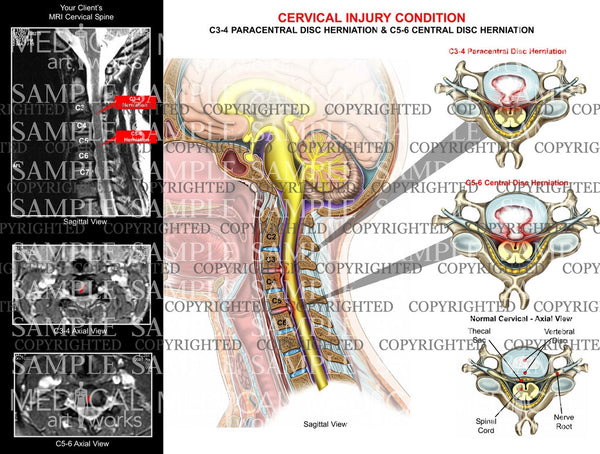 2 level - C3-4 and C5-6 cervical spine disc herniations with MRI