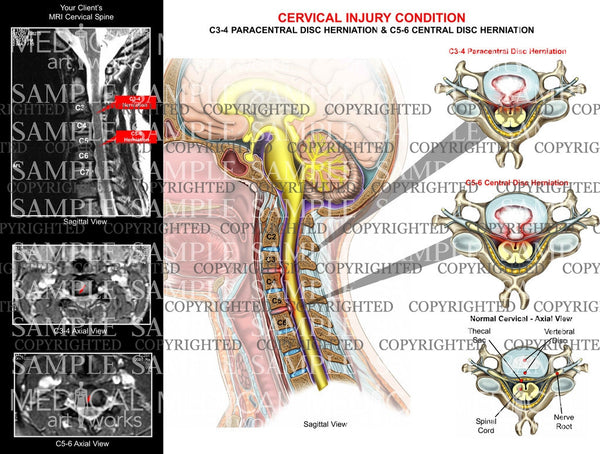 2 level - C3-4  C5-6 disc herniations