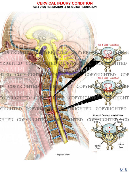 2 level - C3-4 and C5-6 cervical spine disc herniation