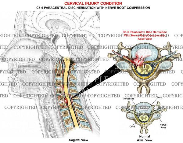 C5-6 disc herniation - paracentral