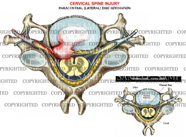 Cervical disc herniation - paracentral - axial view
