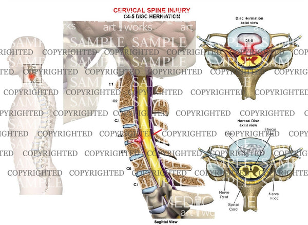 C4-5 disc herniation - central