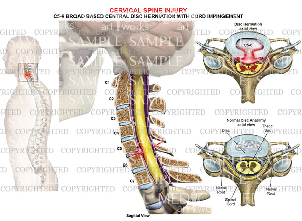 C5-6 disc herniation - broad-based