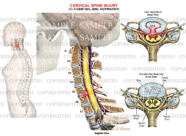 C5-6 disc herniation - central