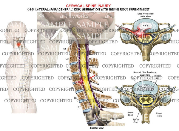 C4-5 disc herniation - nerve root impingement