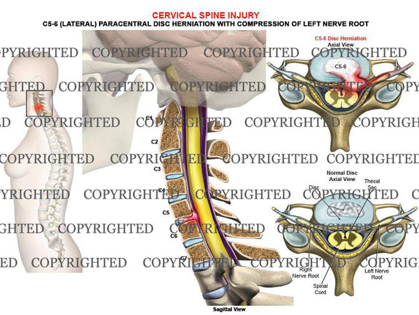 C5-6 left lateral, paracentral disc herniation, compression