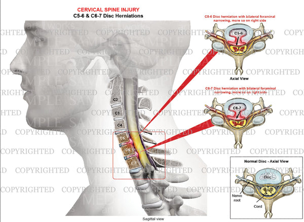 2 level - C5-6 & C6-7 Cervical disc herniation - Bilateral foraminal narrowing