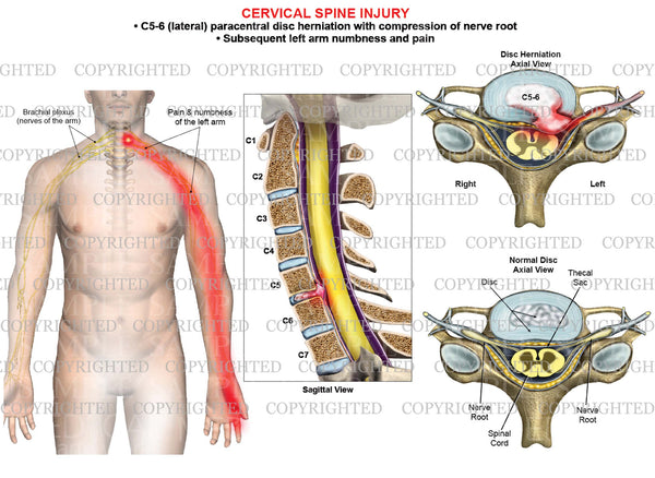 C5-6 disc herniation - paracentral - left arm nerve pain numbness